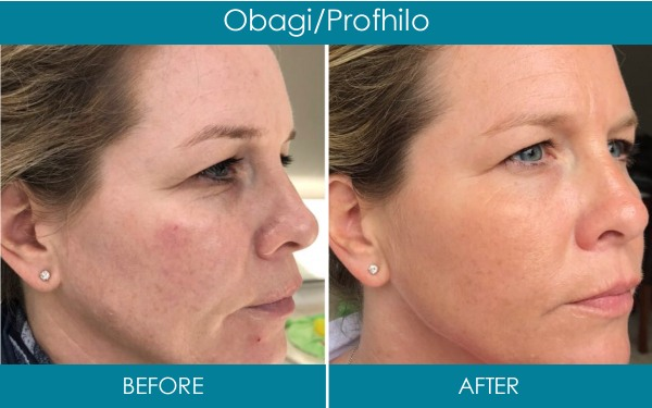 Ranelagh Dental Clinic - obagi and profhilo facial treatment before and after