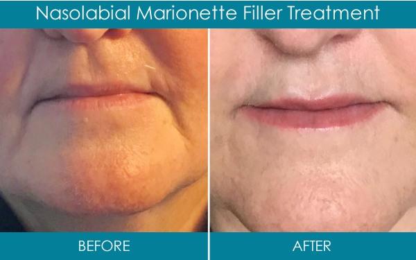 Ranelagh Dental Dermal Fillers - Nasolabial marionette filler treatment