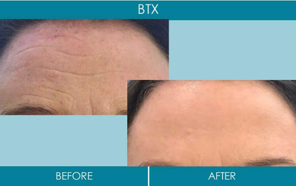 Ranelagh Dental Clinic - botox treatment before and after