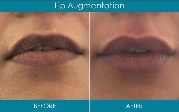 Ranelagh Dental Dermal Fillers - lip augmentation dublin