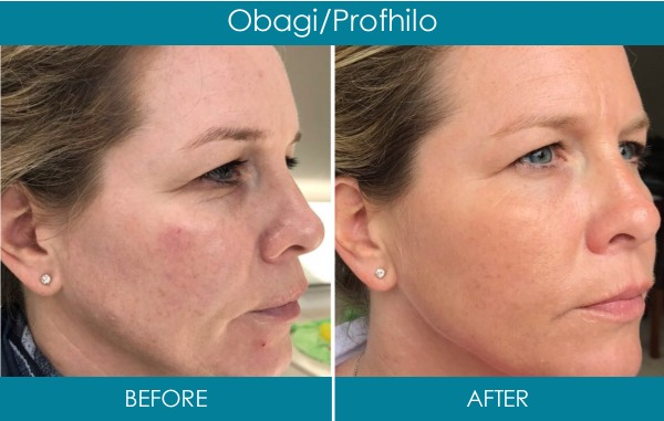 Ranelagh Dublin Clinic - Anti Wrinkle treatment before and after - reduce wrinkles